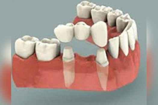 لابراتور و دندانسازی صدف