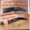 کاشت مو محمدی- تصویر کوچک