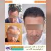 کلینیک کاشت مو دکتر علیزاده - تصویر کوچک
