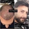 کاشت مو پیمایش