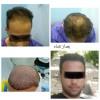 کاشت مو و مشاوره رضایی