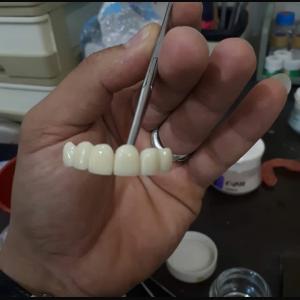 دندانسازی و دندانپزشکی میرزایی